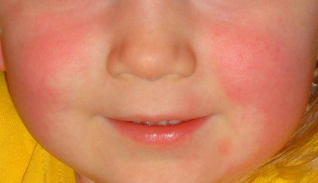 vörös foltok az arcon az antibiotikumoktól)