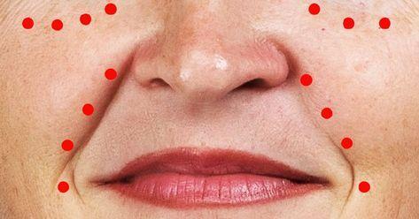 vörös foltokkal ébredt az arcán)