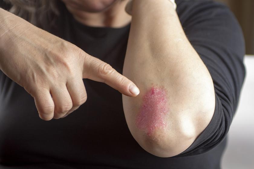 magnézia a pikkelysömör kezelésében
