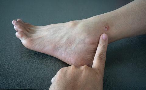 vörös foltok hólyagokkal a lábán