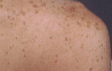 vörös viszkető foltok a könyökön vörös foltok jelentek meg a hónalj kezelés alatt