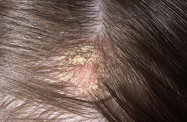 kiütés a fejbőrön vörös foltok formájában