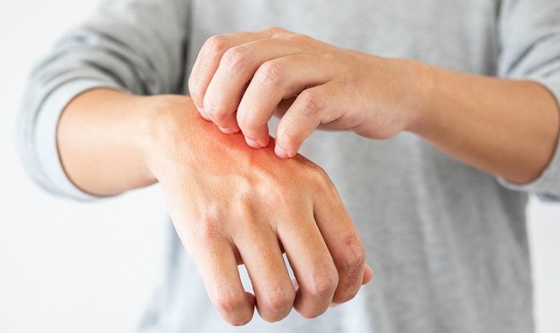 mosodai szappan pikkelysömör kezelésére vörös foltok jelentek meg a hónalj kezelés alatt
