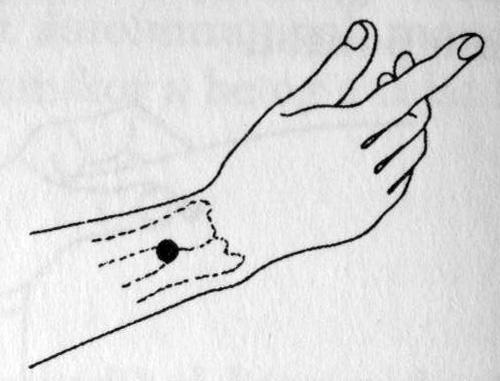 akupunktúra pikkelysömör kezelése