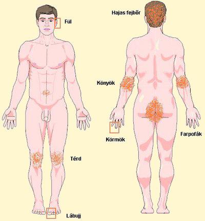 pikkelysömör okozza a tünetek kezelését