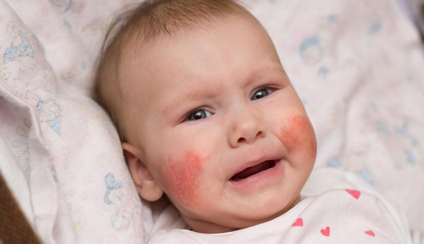 vörös durva foltok az arcon)