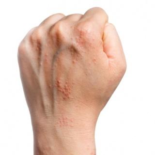 pikkelysömör kezelése vörös bodzával