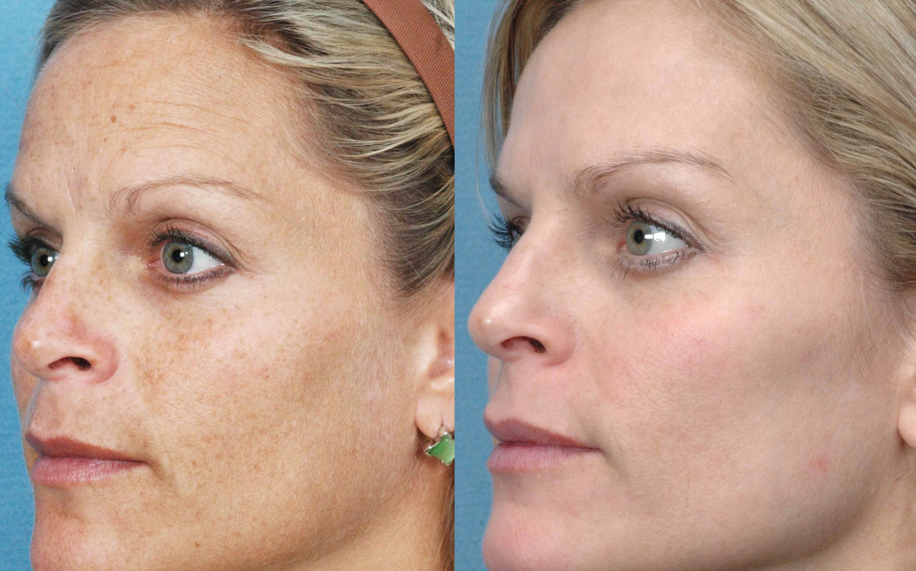 vörös foltok az arcon horzsolások után hogyan lehet megszabadulni pikkelysömör kezelése aktív szénnel