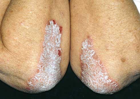 hogyan kell kezelni a poliartritist s a pikkelysmrt)