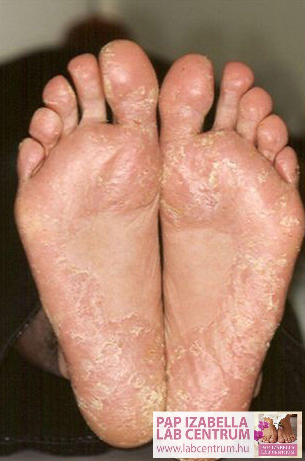 hogyan kell kezelni a láb pikkelysömörét