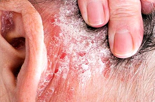 pikkelysömör ultraibolya kezelés