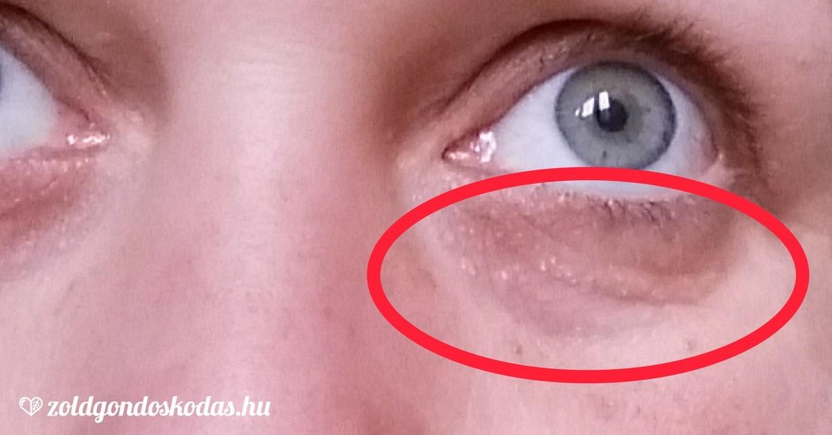 a szem közelében vörös folt viszket