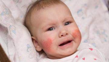 vörös foltok a bőr étrendjén vörös folt születésétől fogva