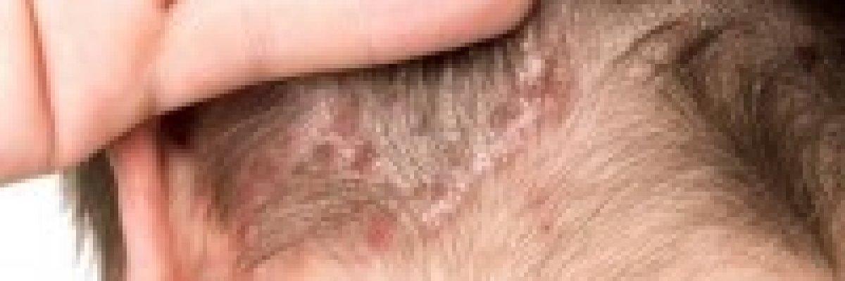 fejbőr pikkelysömör kezelése szódával)