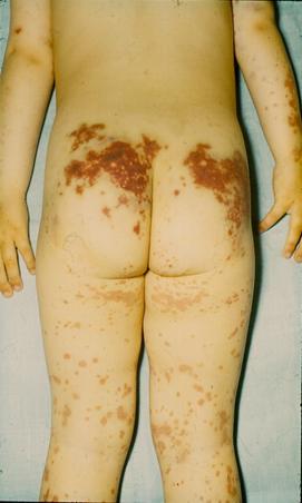 vörös foltok a térd alatt felnőttek kezelésében)