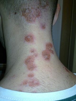 nem gyógyuló vörös folt a lábán)
