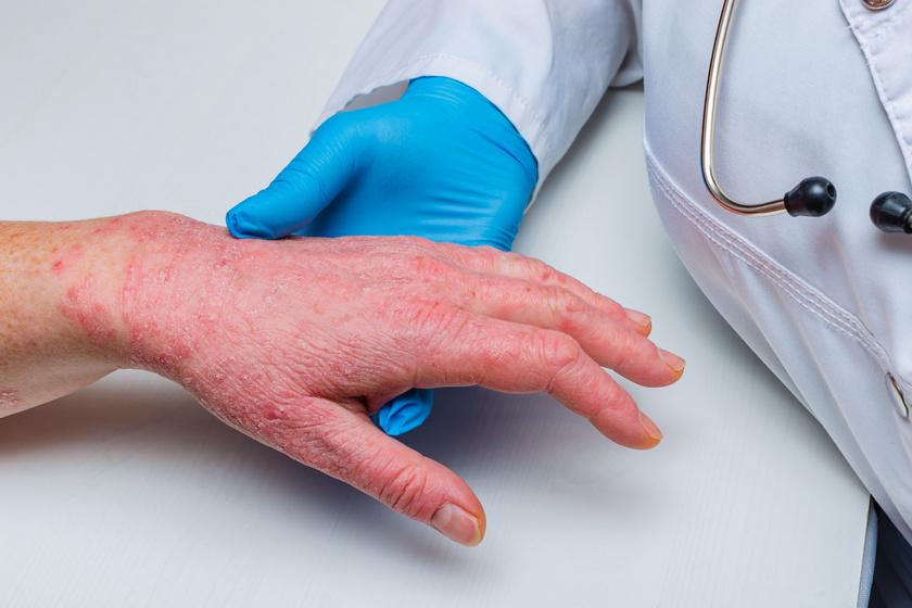hogyan lehet pikkelysömör kezelésére rohadt ujjal pikkelysömör gyógyszer kezelse