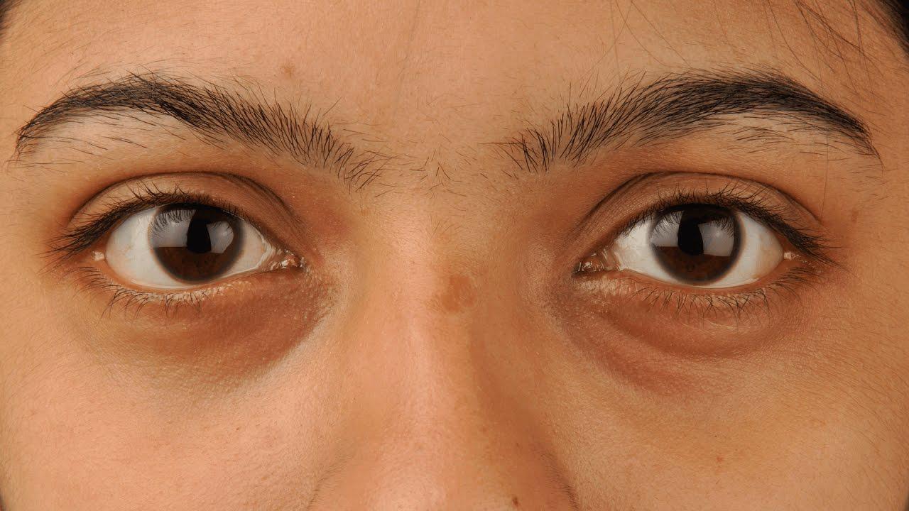 vörös pikkelyes folt a szem közelében)