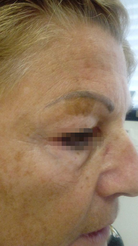 milyen kenőcsök segítenek az arcon kialakuló pikkelysömörben fáj a lábán a piros folt