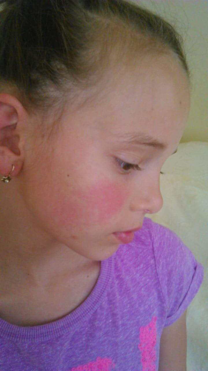vörös foltok a nyak arcán)