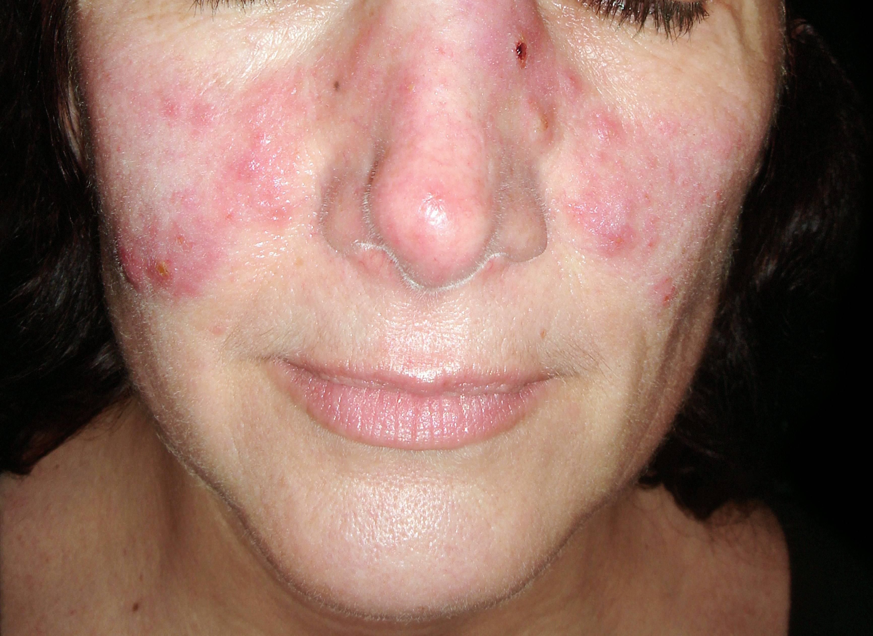 kiütések az arcon piros foltok formájában fotó