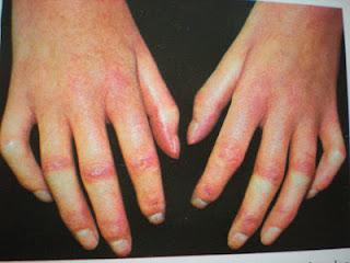 foltok az ujjakon vörös fájdalom
