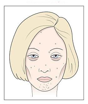 vörös foltok hálózódnak az arcon új gyógymód a pikkelysömörhöz