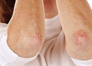 pikkelysömör vagy pikkelyes zuzmó kezelés