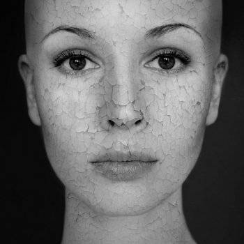 Arc maszk rosacea - Magas vérnyomás November