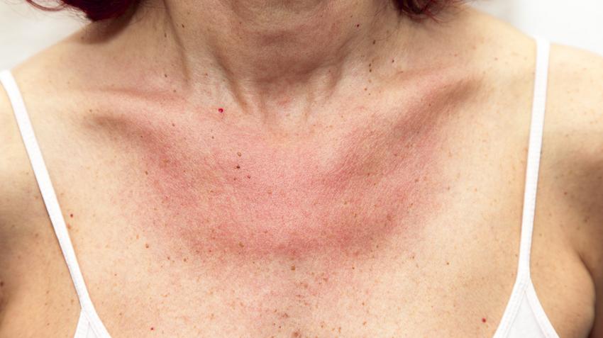 vörös nyak foltok egy felnőttnél viszketést okoznak