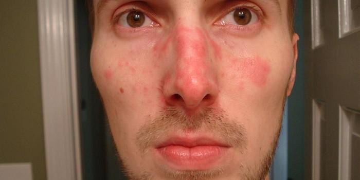vörös foltok jelennek meg az arcon, mint a karcolások