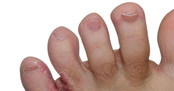 a lábán egy vörös folt hámlik le
