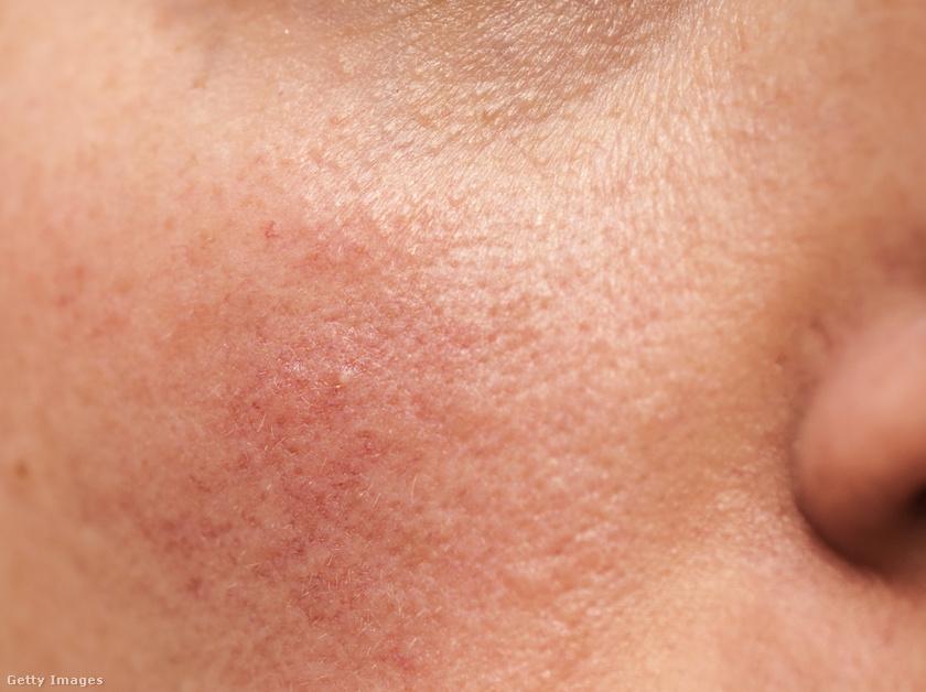 vörös foltok hálózódnak az arcon pikkelysömör kezelése az étrendben