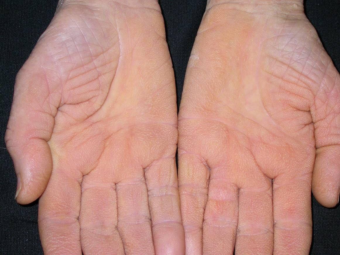 vörös foltok a hüvelykujj közelében lévő kézen)