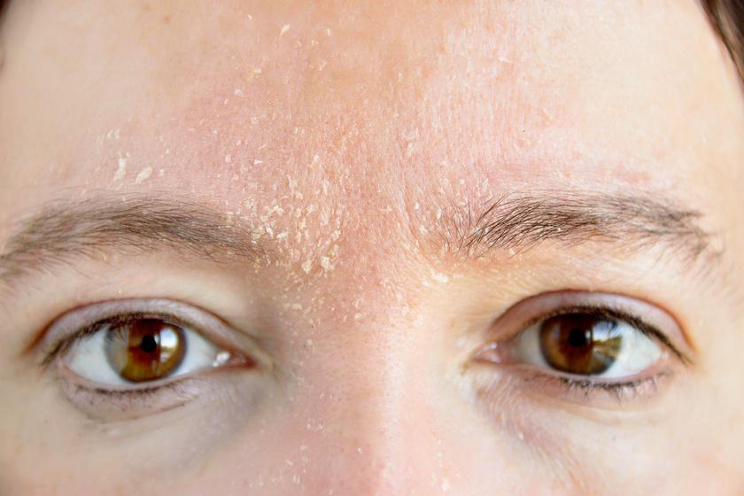az arcbőr száraz és vörös foltok)