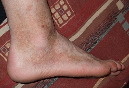 a lábakon vörös foltok fájnak, amikor megnyomják)
