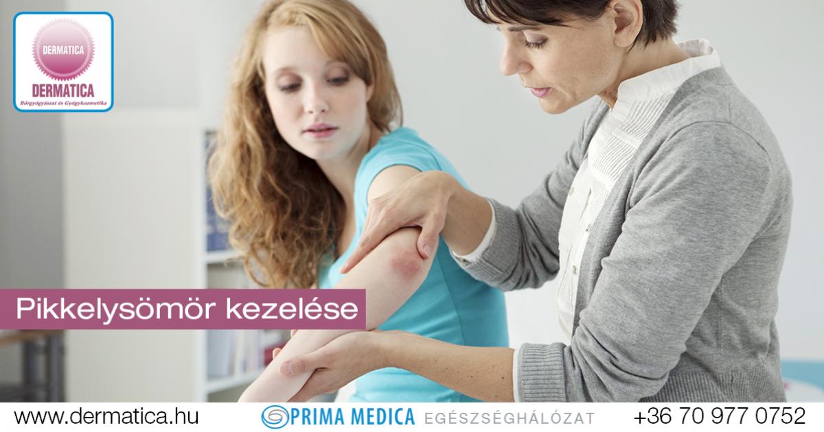diagnózis pikkelysömör kezelése)