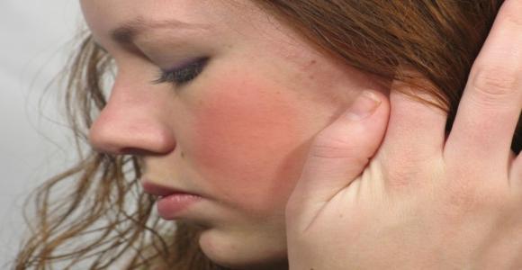 mosás után az arc vörös foltokkal borul)