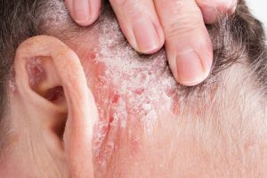 hogyan gyógyultam meg keményedéssel a pikkelysömöröt ekcma pikkelysömör dermatitis kezelse