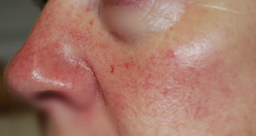 vörös folt az arcon az orr közelében)