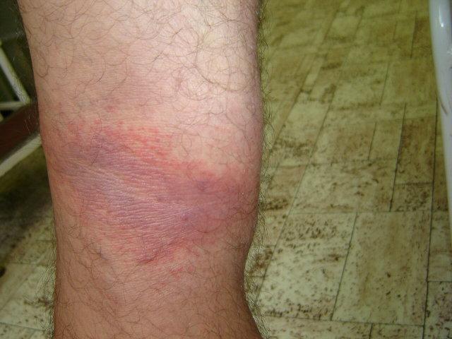 a lábán vörös folt viszket és növekszik