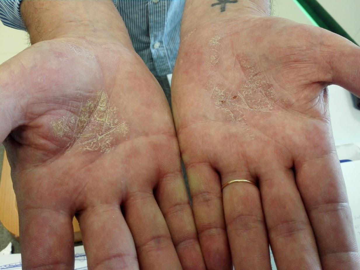 pikkelysömör tünetei gyógyszeres kezelés vörös foltok a mellkas hasán