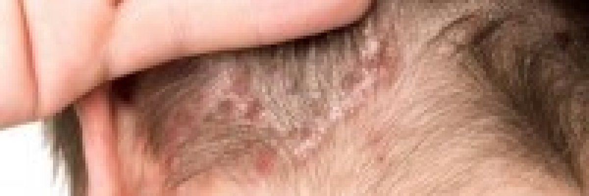 egy vörös folt fáj a fejbőrön