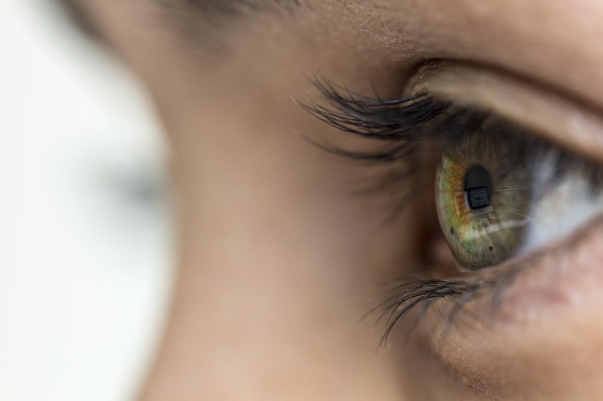 Hogyan lehet eltávolítani vörös foltok a szem alatt