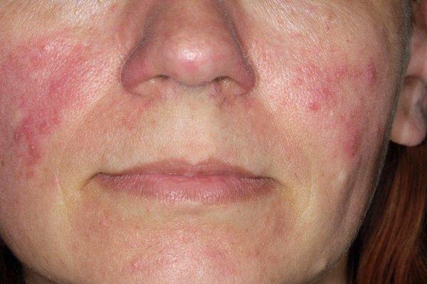 a száj körüli arcon vörös foltok okozzák
