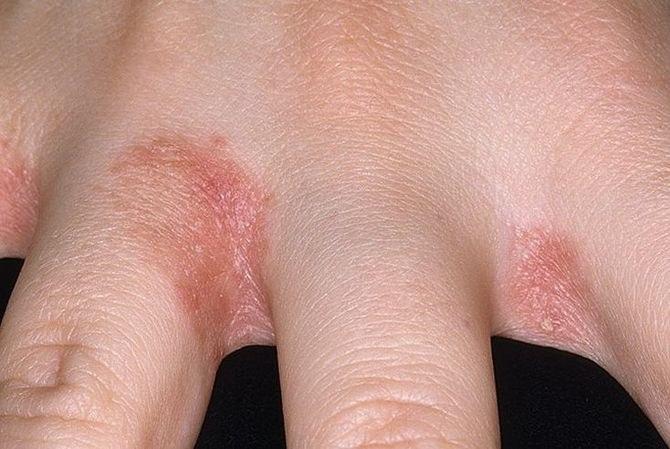 száraz vörös foltok az ujjakon