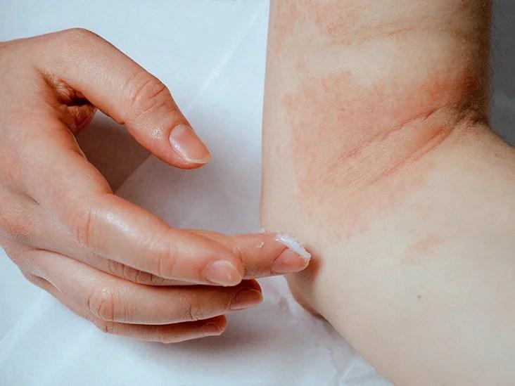 Alkalmazás amarant psoriasis