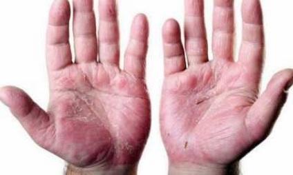 Kenőcs a tenyér pikkelysömörének kezelésére - A pikkelysömör kezelése