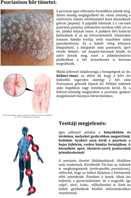 népi gyógymódok pikkelysömörhöz a kezeken és a lábakon)