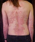 mi a pikkelysömörbetegség és hogyan kell kezelni)